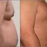 lipoliza laserowa piersi brzuch 150x150 Laserowe odsysanie tłuszczu   lipoliza laserowa SlimLipo